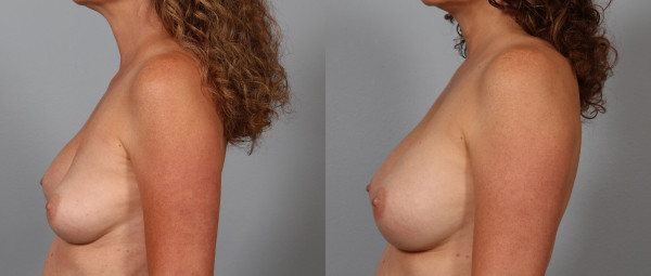 breast implant correction 3