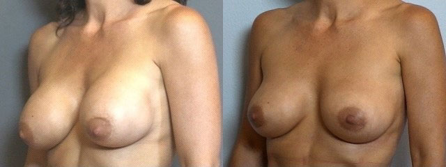 breast implant correction 7