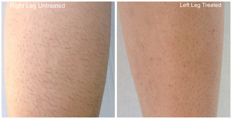 Laser hair removal diolaze in fort collins co colorados top our approach to laser hair removal solutioingenieria Images